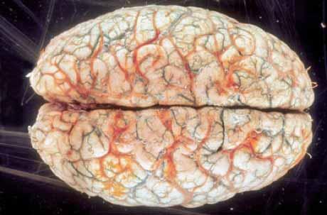 Количество извилин в мозге и наличие ума - вещи несопостовимые