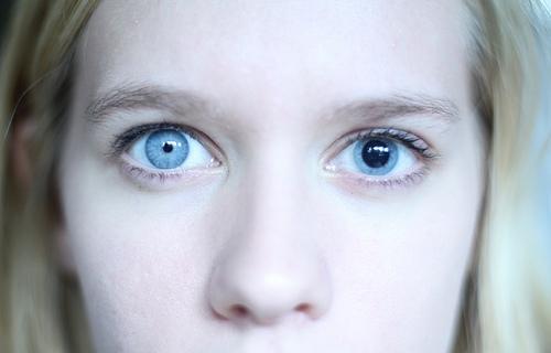 Синдром, характеризующийся разным размером зрачков правого и левого глаза называется - анизокория.