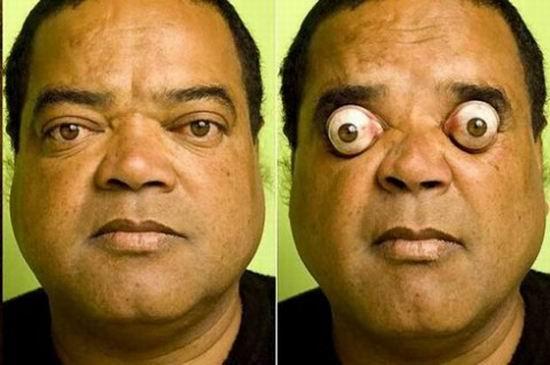 Житель Бразилии выдвигает глаза из орбит на 95%