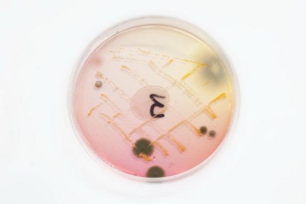 Так выглядят бактерии, живущие на деньгах
