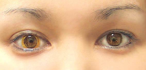 Цветные контактные линзы – прямой путь к слепоте