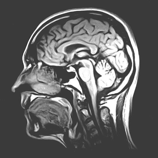 Сокращение потребления калорий на 40% замедляет старение мозга
